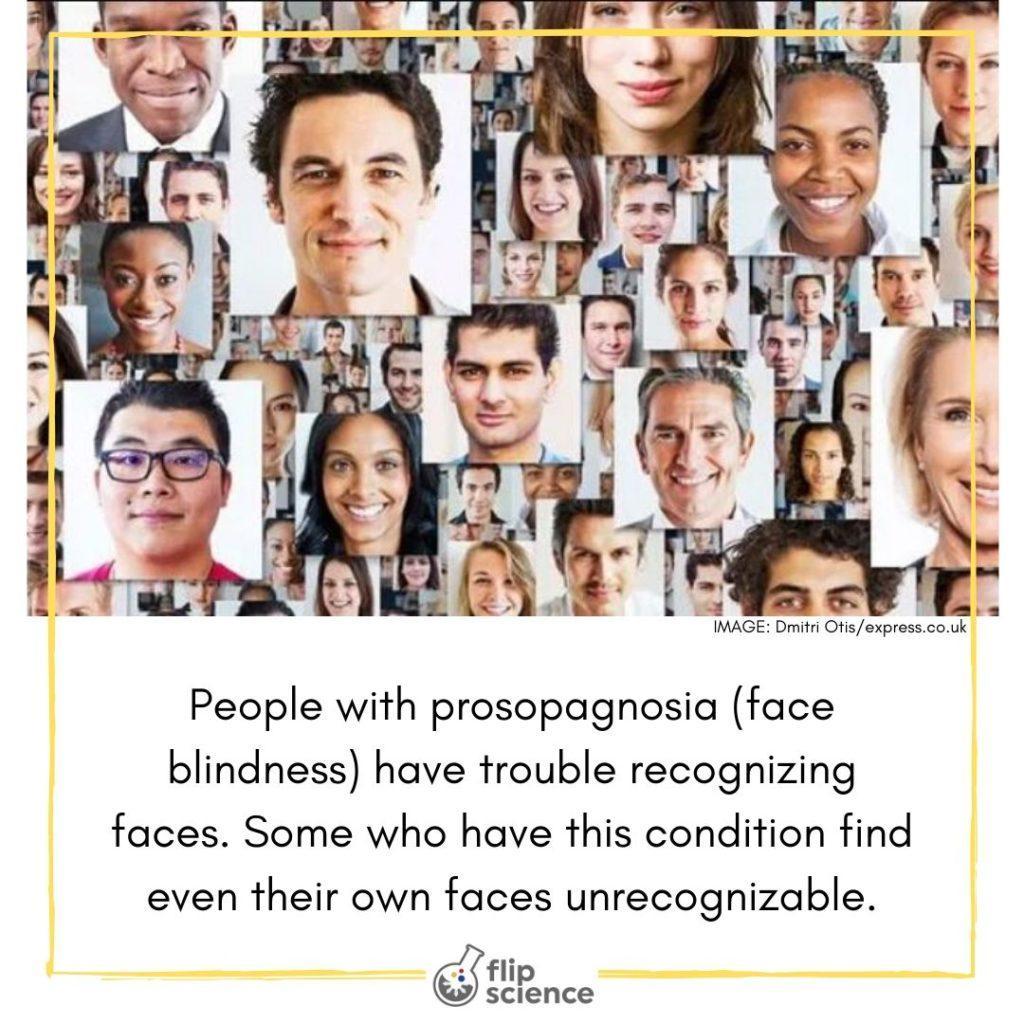 prosopagnosia, flipfact, flipfacts, flipscience